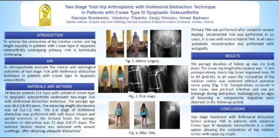 Эндопротезирование коленного сустава харьков
